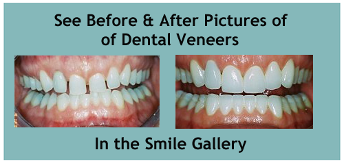 Dental Veneers in Honolulu HI | Hawaii Cosmetic Dental | Dr